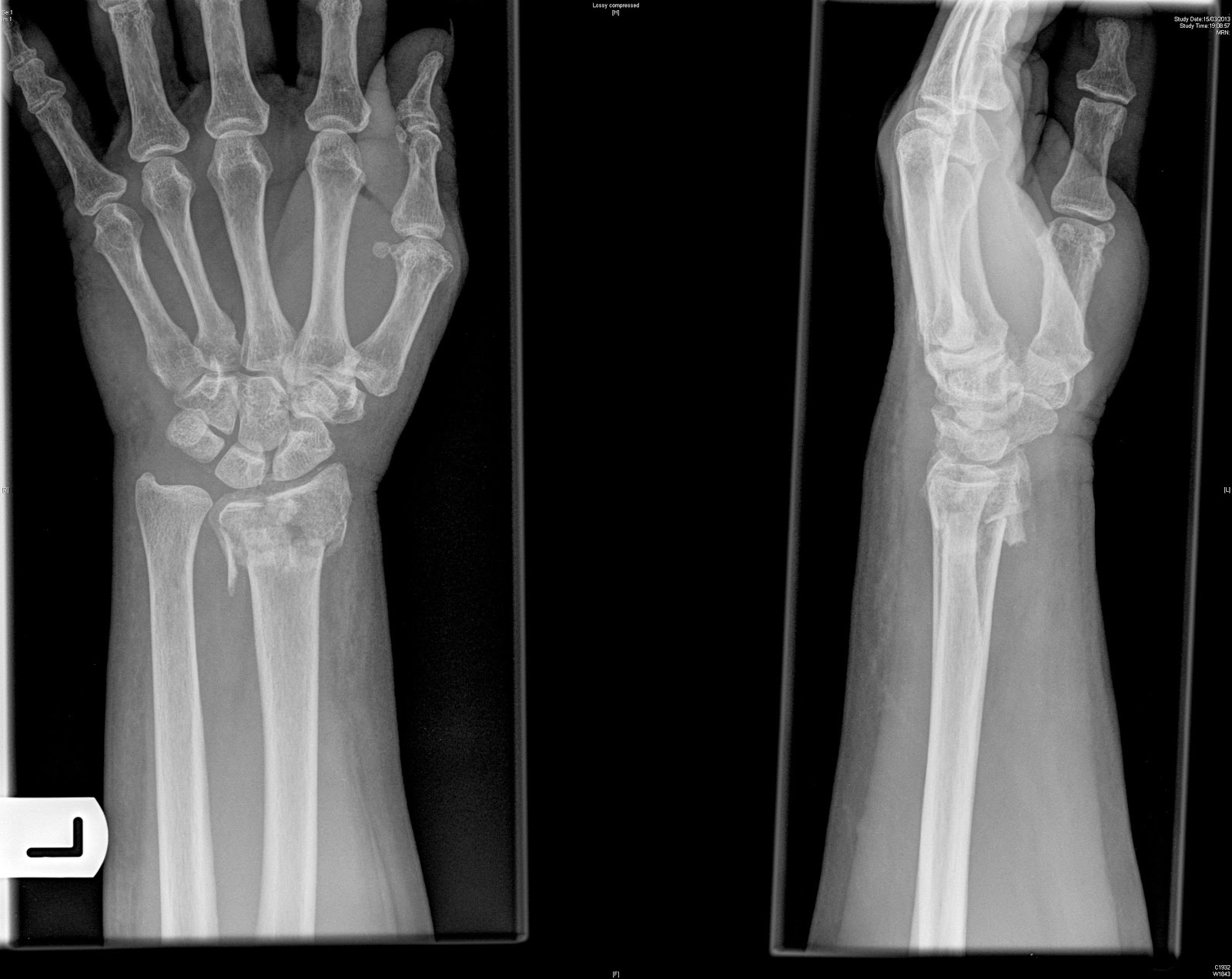 smith fracture x ray - HD1600×1272